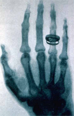 Première radiographie